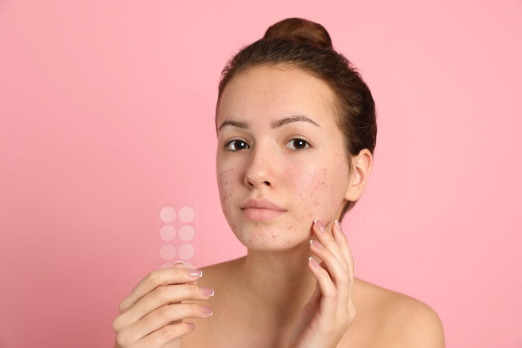 Teen girl holding acne healing patches on light pink background